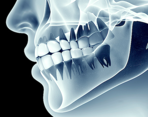 What are dental X-rays