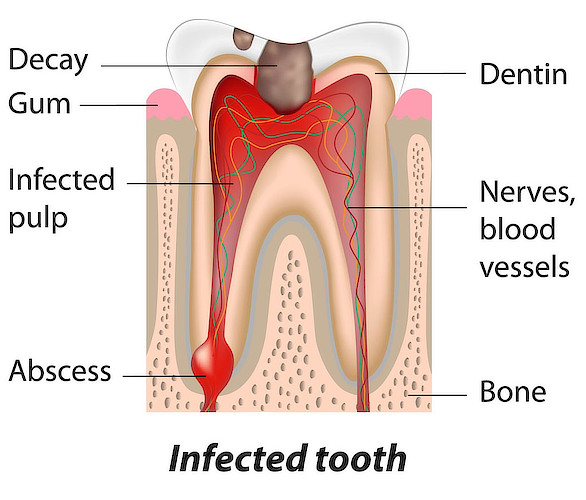 Abscessed Tooth Symptoms